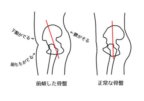 膝 の 痛み 原因 症状