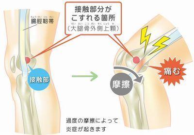 ランニング 膝 痛み
